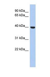 NBP1-69232 - STOML3