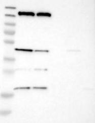 NBP1-84261 - Stereocilin / STRC