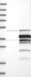 NBP1-86122 - Syntaxin 11 / STX11