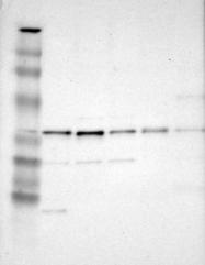 NBP1-93968 - Syntaxin 17 / STX17