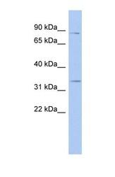 NBP1-56467 - Syntaxin 19 / STX19