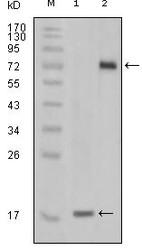 NBP1-47511 - STYK1 / NOK