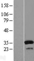 NBL1-16600 - SULT1A1 Lysate