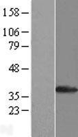 NBL1-16601 - SULT1A1 Lysate