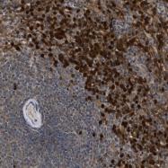 NBP1-86995 - SULT1B1