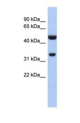 NBP1-54403 - SULT1B1