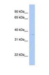 NBP1-53102 - SULT1C2 / SULT1C1