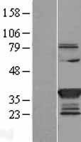 NBL1-16605 - SULT1C2 Lysate