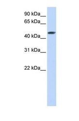 NBP1-54828 - SULT2B1