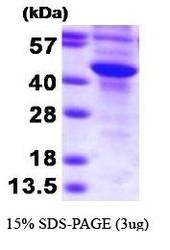 NBP1-41135 - SULT2B1