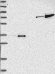 NBP1-84145 - SUMF2