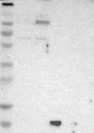 NBP1-87395 - UNC84A