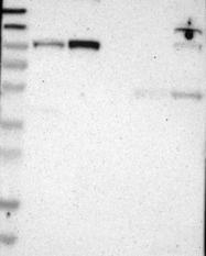 NBP1-87396 - UNC84A
