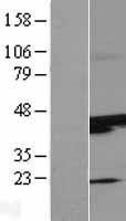 NBL1-16614 - SUNC1 Lysate