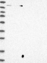 NBP1-83508 - SUPT5H