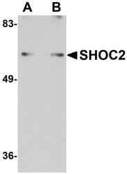 NBP1-77041 - SHOC2