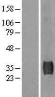 NBL1-16623 - SUSD3 Lysate