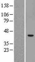 NBL1-16626 - SUV39H2 Lysate