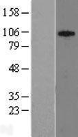 NBL1-16627 - SUV420h1 Lysate