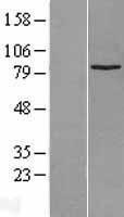 NBL1-16629 - SUZ12 Lysate