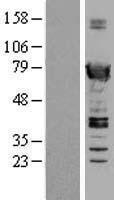 NBL1-16634 - SWAP70 Lysate