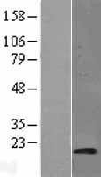 NBL1-16642 - SYNJ2BP Lysate