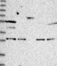 NBP1-81975 - Synaptotagmin-14