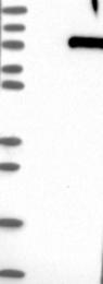 NBP1-85628 - Synaptotagmin-16