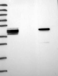 NBP1-92473 - Synaptotagmin-9