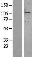 NBL1-16657 - SYTL2 Lysate