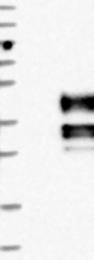 NBP1-86091 - SCN2B