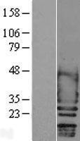 NBL1-15742 - Scn2b Lysate