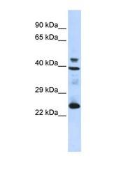 NBP1-70770 - Selenoprotein P (SEPP1)