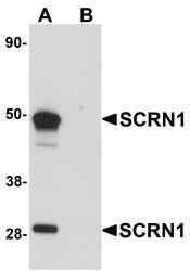 NBP1-77187 - Secernin-1 (SCRN1)