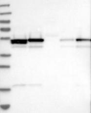 NBP1-87861 - Secernin-1 (SCRN1)