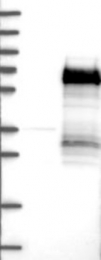 NBP1-89825 - Secretogranin-3 (SCG3)