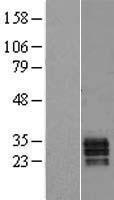 NBL1-15731 - Secretogranin V Lysate