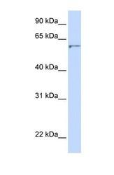 NBP1-59369 - Seladin-1 / DHCR24