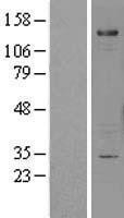 NBL1-15804 - Sema6A Lysate