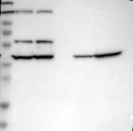 NBP1-85212 - Septin-2