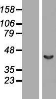 NBL1-07140 - Septin 2 Lysate