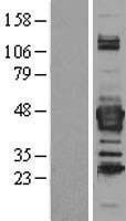NBL1-07141 - Septin 3 Lysate