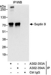 NBP1-28711 - Septin-9 (SEPT9)