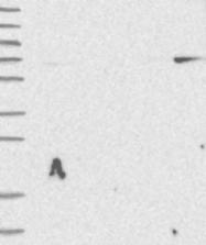 NBP1-92379 - SPTLC2