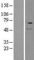 NBL1-16441 - Serine Palmitoyltransferase 2 Lysate