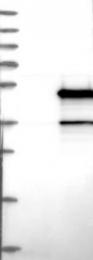 NBP1-83163 - SERPINB2 / PAI2