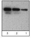 NBP1-45820 - SERPINB9