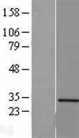 NBL1-15859 - Sertad1 Lysate
