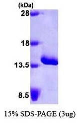 NBP1-30209 - Serum Amyloid A protein (SAA)