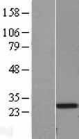 NBL1-07596 - Serum Amyloid P Lysate